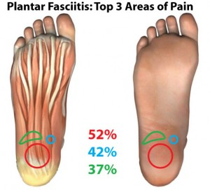Plantar Fasciitis Top Areas of Pain