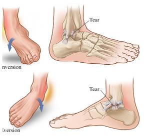 Theratape Inversion Sprain