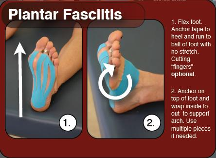 Kinesiology Taping for Plantar Fasciitis | Theratape.com ...