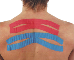 How Does Kinesiology Tape Work | Theratape.com
