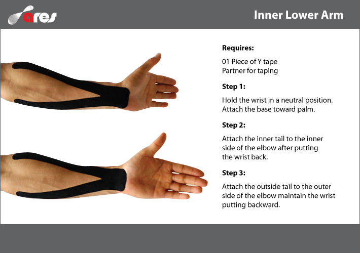 Inner Lower Arm Pain Ares Theratape Education Center