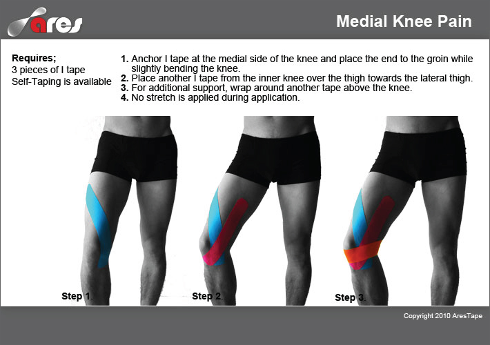 Medial Knee Pain - Ares • TheraTape Education Center